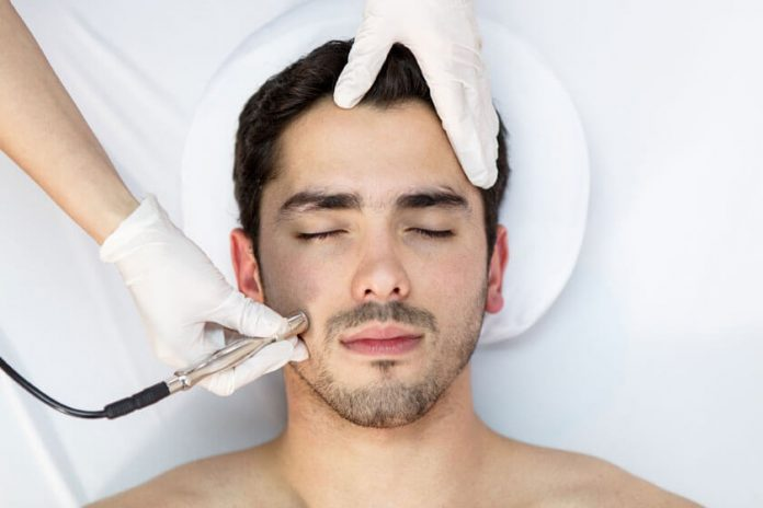 Microdermabrasion Men